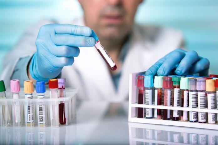 Dlaczego warto wykonać badania laboratoryjne